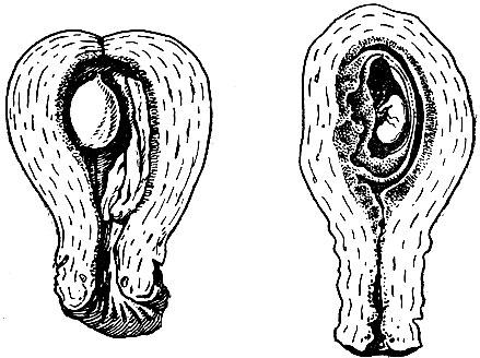 Рис. 2. Матка с плодным яйцом в начале беременности (в разрезе)