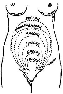 Рис. 4. Рост матки от IV до X акушерского месяца (схема)
