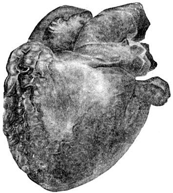 Атрофия жировой клетчатки
