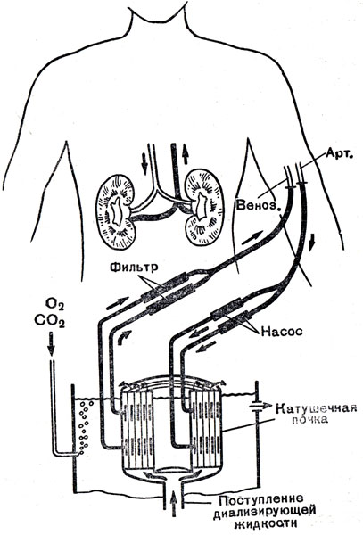 Схема искусственной почки