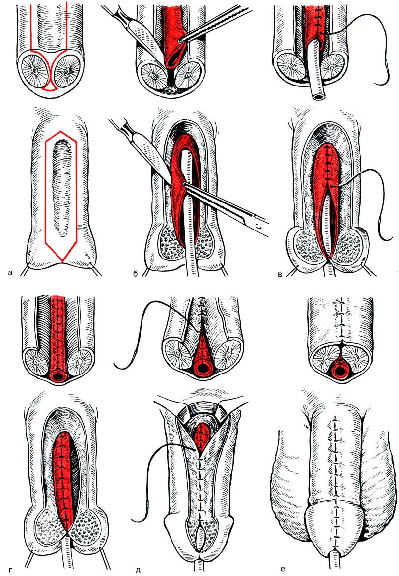 схема кровоснабжения яичек