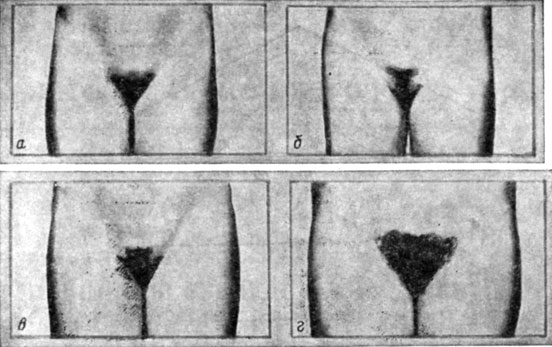 Длины лобковых волос у женщин