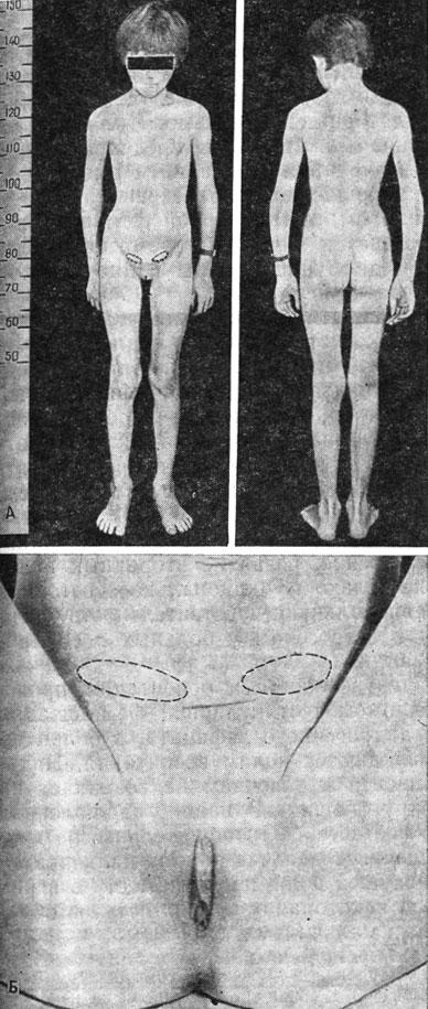 Строение наружных гениталий интерсексуальное