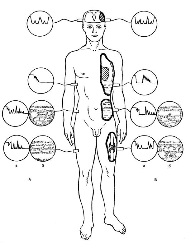 Схема ультразвуковой
