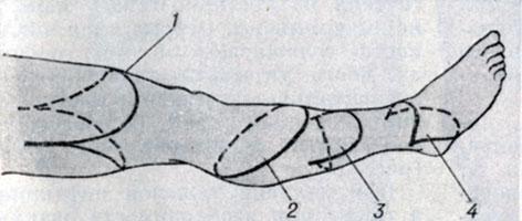 Схема ампутации голени