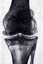 Артроцентр коленного сустава пикамилон при дисплазии тазобедренных суставов